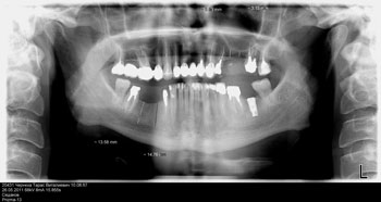 Single-Tooth Implants