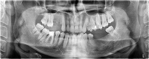 отсутствие зубов на нижней челюсти слева