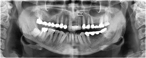отсутствие зуба 21