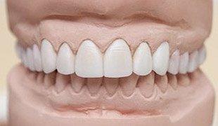 керамические реставрации зубов