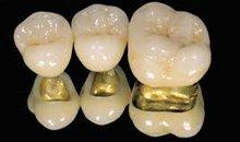 Prosthodontic kyiv