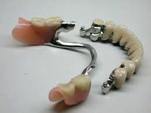 Clasp prosthesis