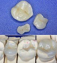 восстановления дефектов зуба
