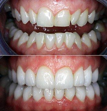 Стоимость протезирования зубов Киев